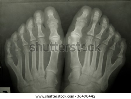 X-ray photo of person's toes. The person has 6 toes!