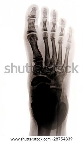 X-ray photograph of human foot - stock photo