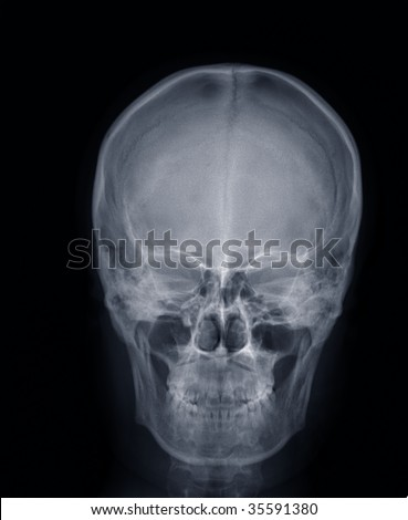 x-ray picture:human head,frontal view - stock photo