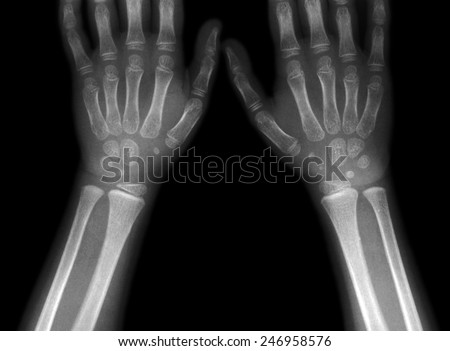 x-ray picture of hands