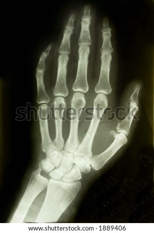 x-ray picture of the palm - stock photo