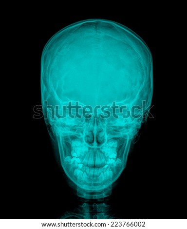 X-ray picture of the skull