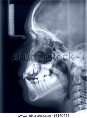 X-ray picture of the skull of the person. Toned negative