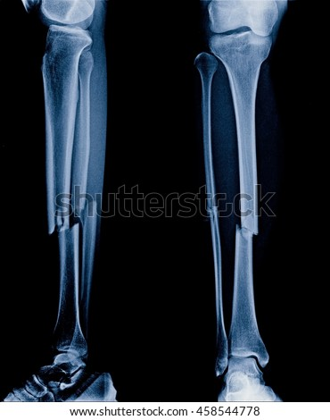 Xray Picture Show Fracture Tibia Fibula Stock Photo 100 Legal