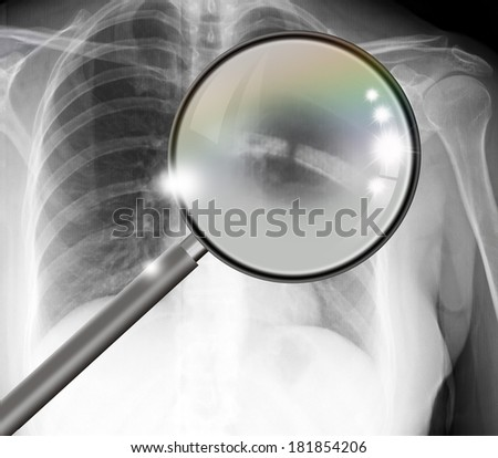 X-ray picture showing rib joints with broken - stock photo