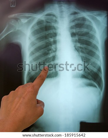 x-ray results in hospital.
