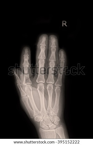 X-ray right hand
