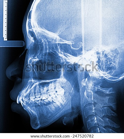 X-Ray scan human for teeth  - stock photo