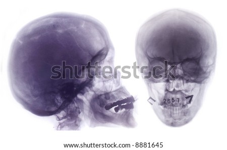 x-ray scull  collection