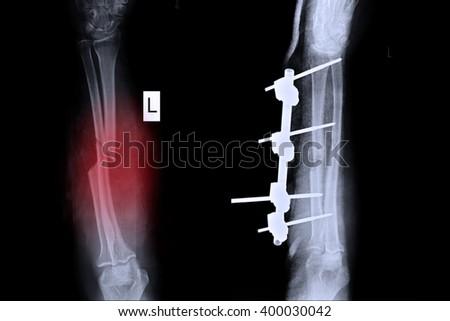 left elbow x ray - photo #47