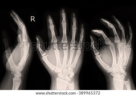 X-ray show Right hand  - stock photo