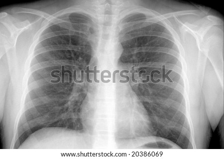 X-ray showing a male's chest area with pneumonia case