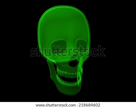 X-Ray Skull - stock photo