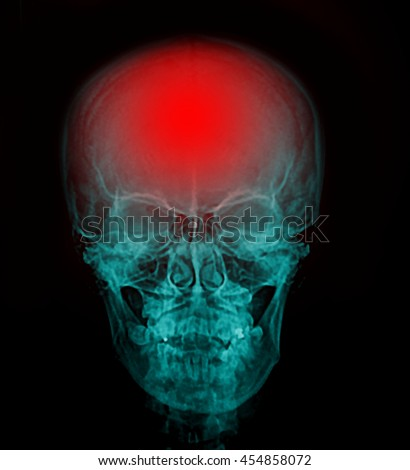 "X-ray skull & cervical spine (lateral) with ""Stroke"""