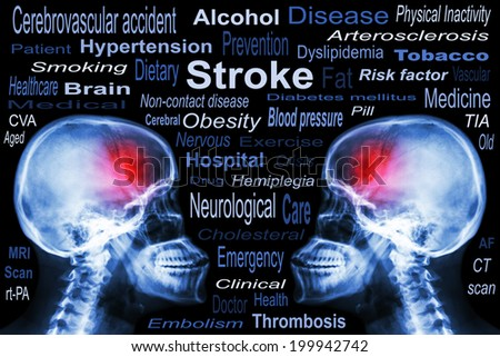 """X-ray Skull with """"Stroke"""" and Medical text - stock photo"""