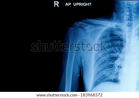 x-rays image of the  shoulder joint. Best for medium or smaller scale. - stock photo