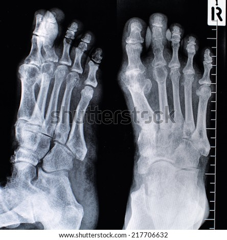 X-rays of both feet