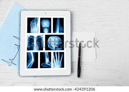 X-rays on the tablet screen on wooden table - stock photo