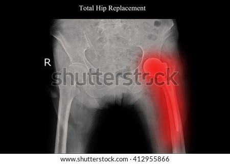 Xray after total hip replacement view  - stock photo