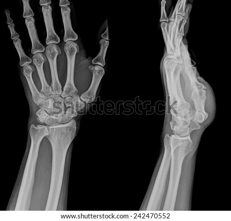 xray fracture distal radius (Colles' fracture) (wrist broken) - stock photo