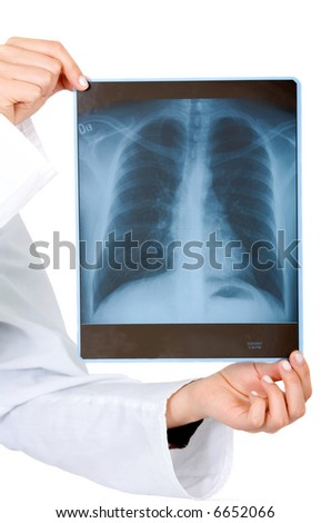 xray held by hands isolated over a white background - stock photo