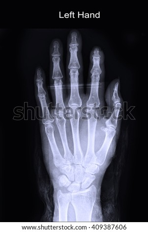 Xray left hand - stock photo