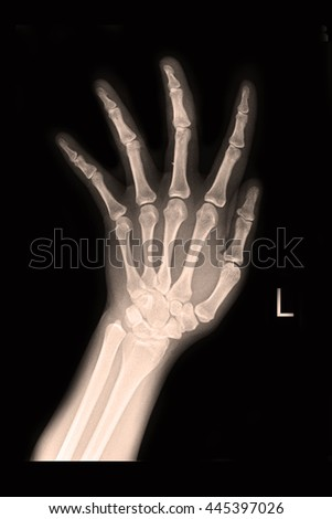 Xray left hand show fracture middle finger