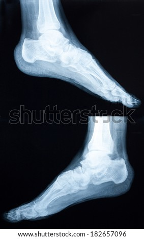 Xray of a human ankle isolated - stock photo