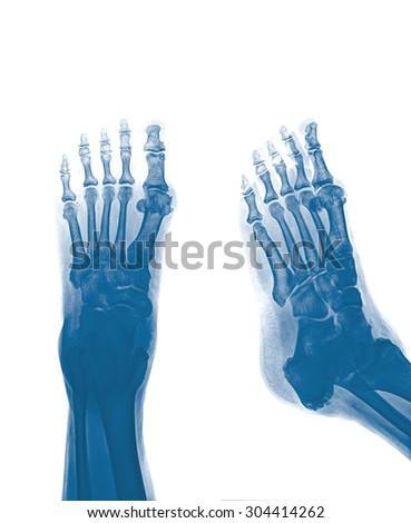 xray of ankle - stock photo