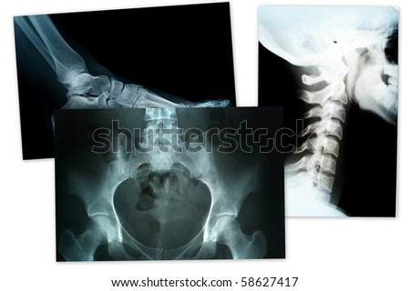 xray of foot head and neck compilation - stock photo