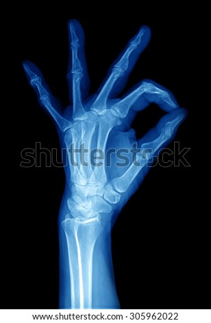 xray of human hand - stock photo