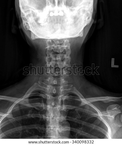 Xray of neck and cervical spine - stock photo