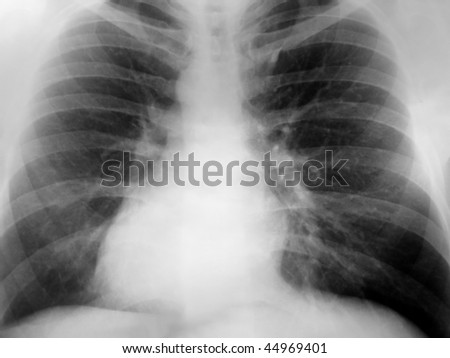 Xray of the chest with a positive exposure showing dextrocardia.