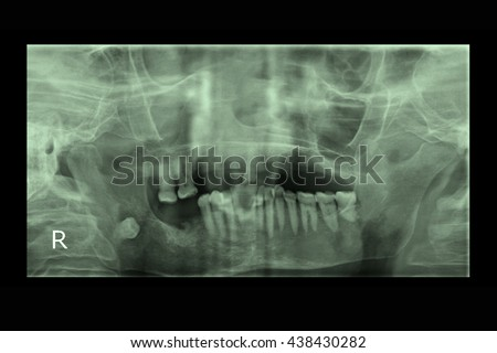 xray result from monitor presenting healthy root and ruin gum from pyorrhea and gumboil