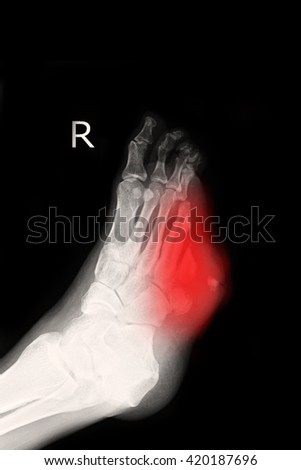 xray right foot : fracture right foot - stock photo