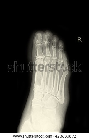 xray right foot ; fracture right foot  - stock photo