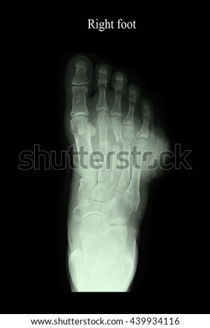 xray right foot :show closed fracture right foot