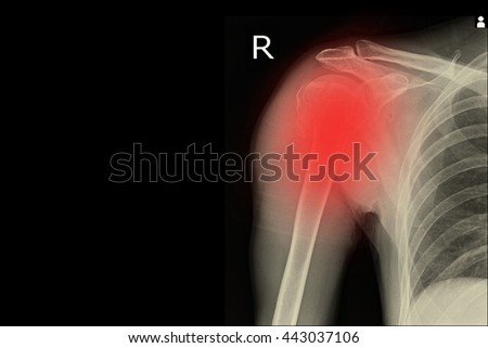 xray shoulder and show frozen shoulder right - stock photo