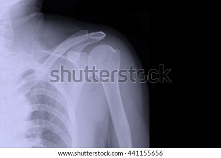 xray shoulder : frozen shoulder left - stock photo