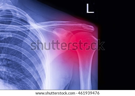 xray shoulder : frozen shoulder left