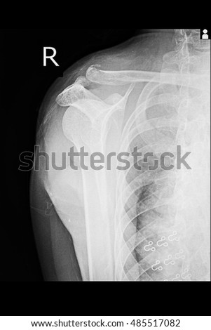 Xray shoulder show fracture right clavicle