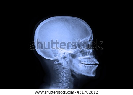 xray skull and cervical spine