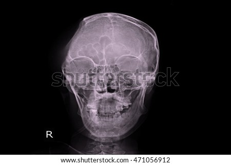 xray skull show post craniotomy