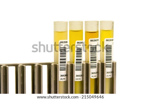 Yellow Urine Medical analysis for automate  - stock photo