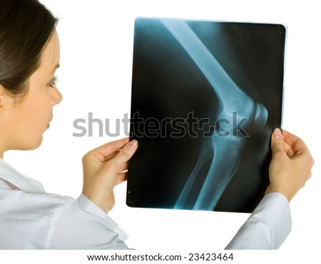 Young attractive female doctor looking x-ray photos of knee. Isolated on white - stock photo
