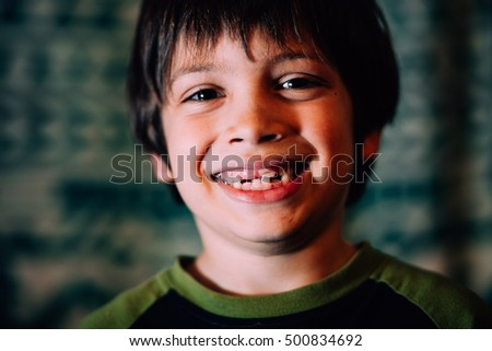 Young boy grinning showing missing teeth in smile.