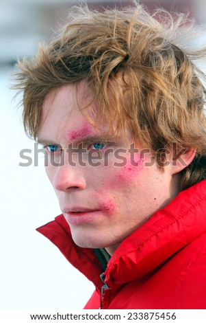 Young caucasian man  with grazes on a face - stock photo
