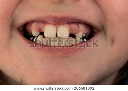 Young female child's teeth, image shows missing baby teeth and the start of the adult teeth coming through the gums, also shows metal crowns on the rear teeth - stock photo