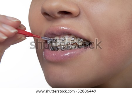 young girl demonstrating small specialized toothbrush for cleaning bracket system standing isolated over white background - stock photo