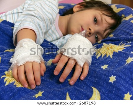 young girl illness,  bandage, foil, ointment on the hands,  burns and scalds hands or allergic hands, - stock photo
